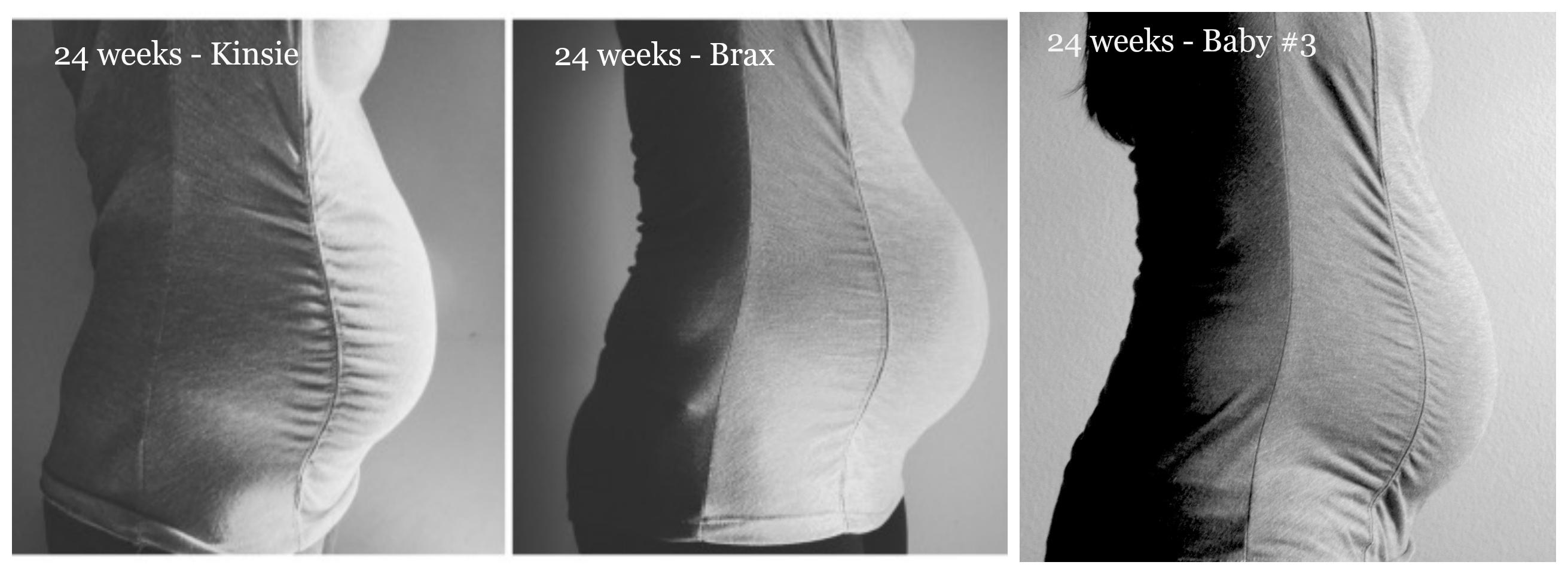 24weeks-3babies
